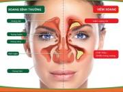 Viêm mũi xoang dị ứng có thể điều trị khỏi