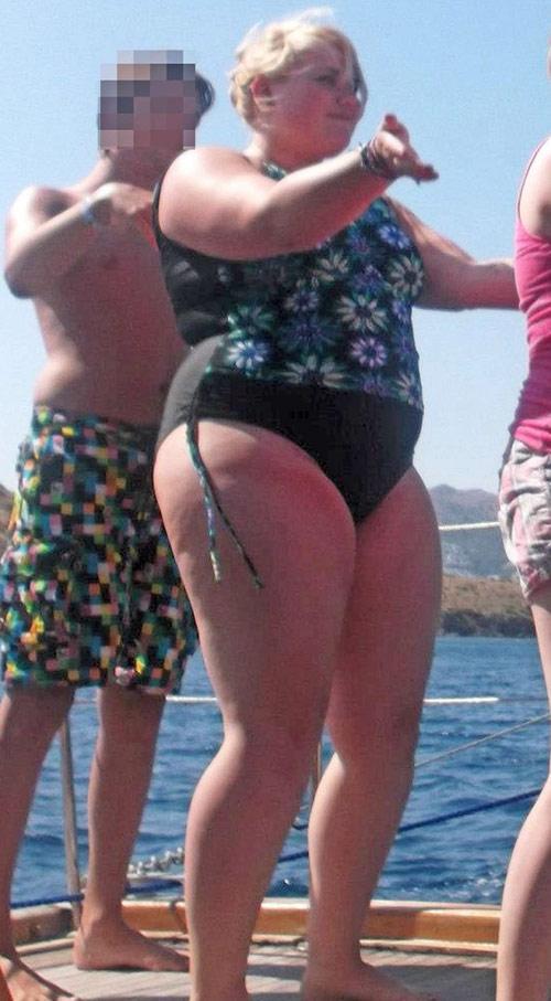 Cô gái suýt mù mắt vì tăng cân quá nhiều - 4