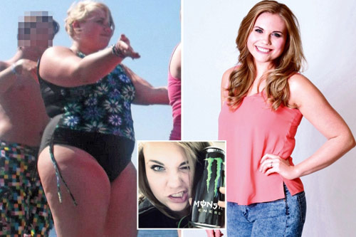 Cô gái suýt mù mắt vì tăng cân quá nhiều - 1