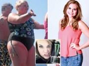 Sức khỏe đời sống - Cô gái suýt mù mắt vì tăng cân quá nhiều