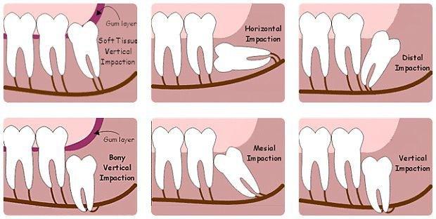 Có nên nhổ răng khôn mọc lệch? - 1