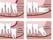 Sức khỏe đời sống - Có nên nhổ răng khôn mọc lệch?
