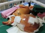 Sức khỏe đời sống - Sốc với khối u to như quả bóng trên người bé gái 12 tuổi