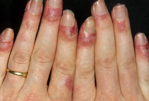 Lupus ban đỏ: Bệnh hiểm gây tổn thương tất cả các cơ quan trong cơ thể - 3