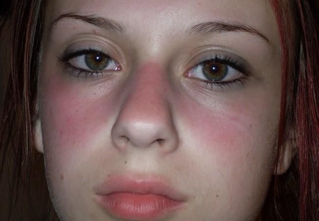 Lupus ban đỏ: Bệnh hiểm gây tổn thương tất cả các cơ quan trong cơ thể - 2