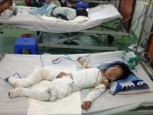 Tin tức trong ngày - Ngã vào nồi nước sôi, bé gái 2 tuổi bị bỏng toàn thân