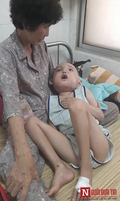 Số phận nghiệt ngã của bé trai từ một cú ngã - 2