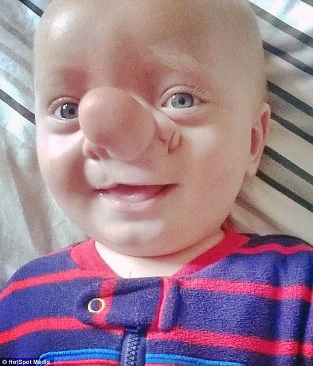 Cậu bé có mũi dài như nhân vật hoạt hình Pinocchio - 1