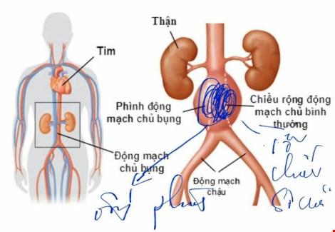 Bệnh nhân có mạch máu bụng phình to như trái bưởi - 3