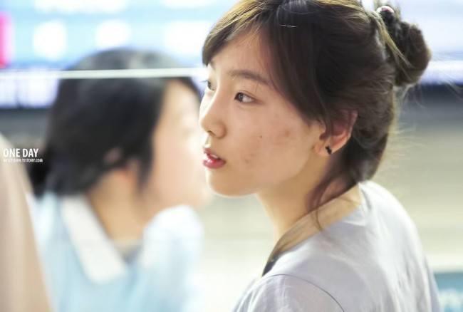 'Vỡ mộng' vì mặt mộc đầy mụn của trai xinh, gái đẹp Kpop - 6