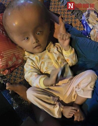 Rơi nước mắt với thân hình 'dị nhân' của bé trai 2 tuổi - 1
