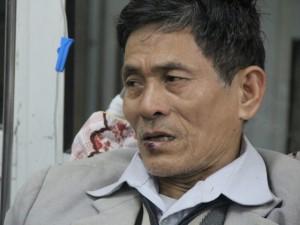 Tin tức Việt Nam - Bé gái 19 tháng tuổi thoát chết trong vòng tay ông