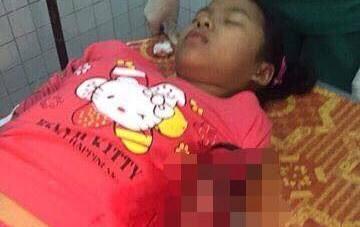 Kẻ đâm ngập dao vào tay bé gái trong đêm Noel bị bắt - 1