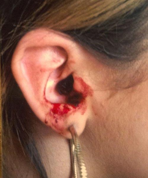 Kỳ lạ cô gái 16 tuổi chảy máu mắt 5 lần mỗi ngày - 2