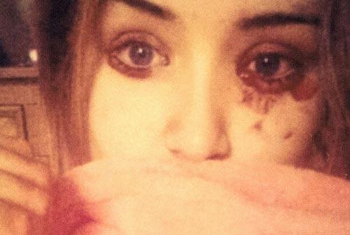 Kỳ lạ cô gái 16 tuổi chảy máu mắt 5 lần mỗi ngày - 1