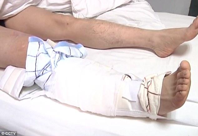 Chàng trai nhập viện sau khi đỡ cô gái rơi từ tầng 11 - 4
