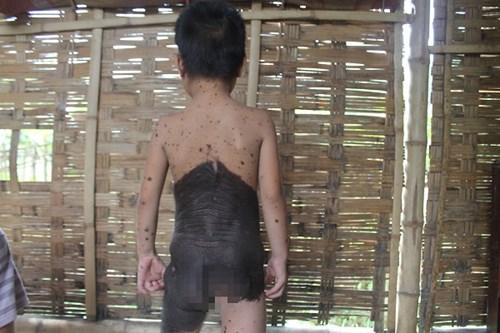"""Xót xa bé gái 5 tuổi mọc lông như """"người rừng"""" ở Nghệ An - 2"""
