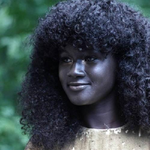 Cô gái trẻ có làn da đen kỳ lạ nhất thế giới - 1