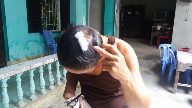 Cha con chi hội trưởng người mù bị đánh dã man - 1