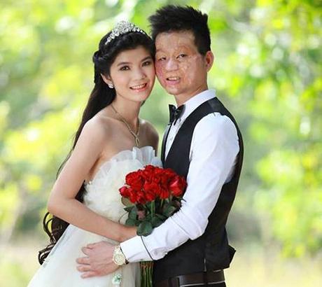 Cuộc sống của chàng trai mặt biến dạng sau hôn nhân - 1