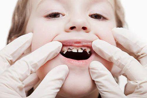 Ngăn ngừa, phòng chống sâu răng ở trẻ nhỏ - 1