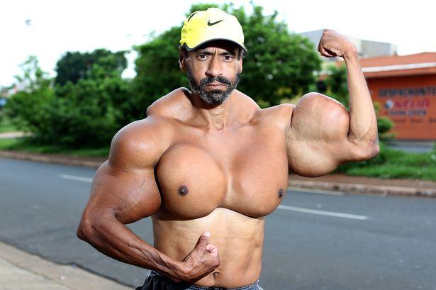 Người đàn ông có vòng bắp tay khổng lồ cực dị - 1