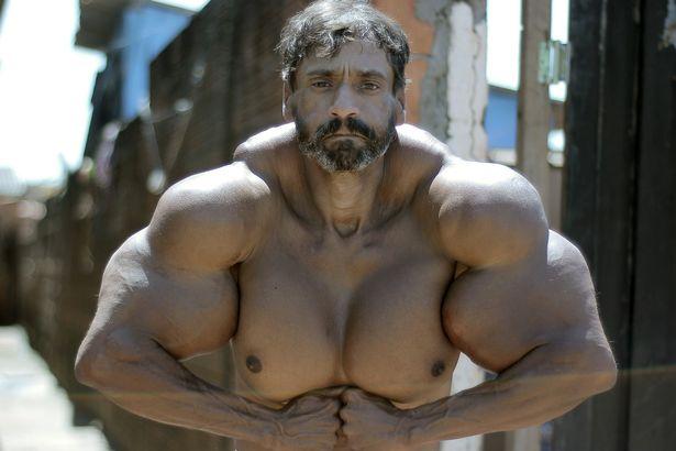 Người đàn ông có vòng bắp tay khổng lồ cực dị - 2