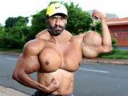 Người đàn ông có vòng bắp tay khổng lồ cực dị