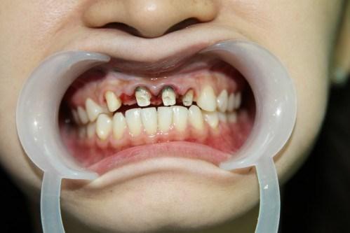 Đừng coi thường những đau nhức răng thoáng qua - 1