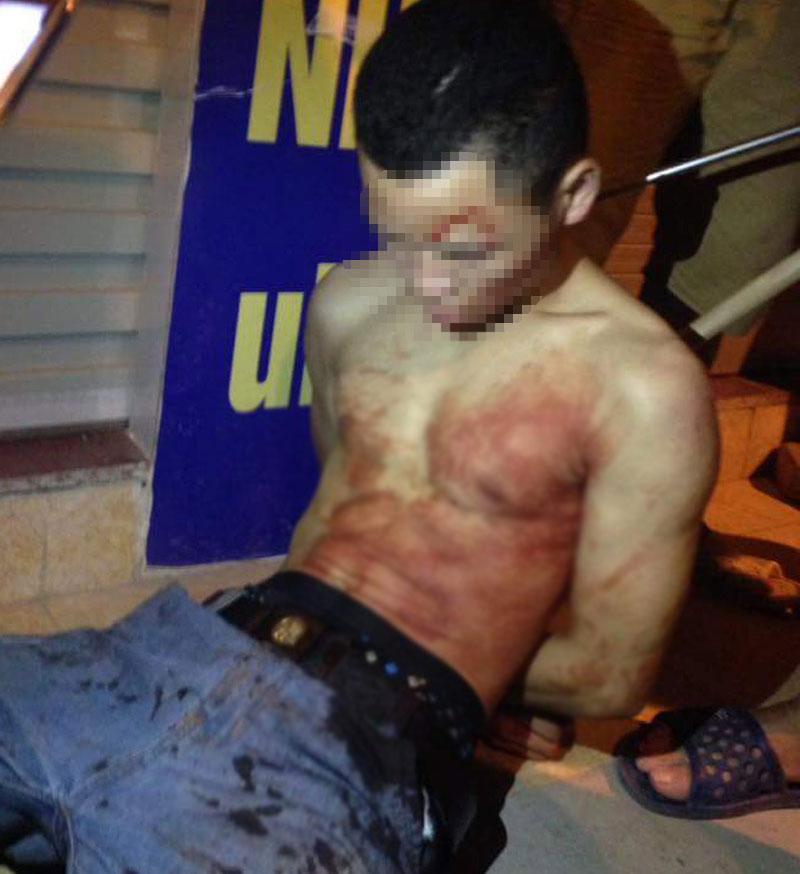 Lái xe taxi bị đâm vào cổ lao ra đường kêu cứu - 2