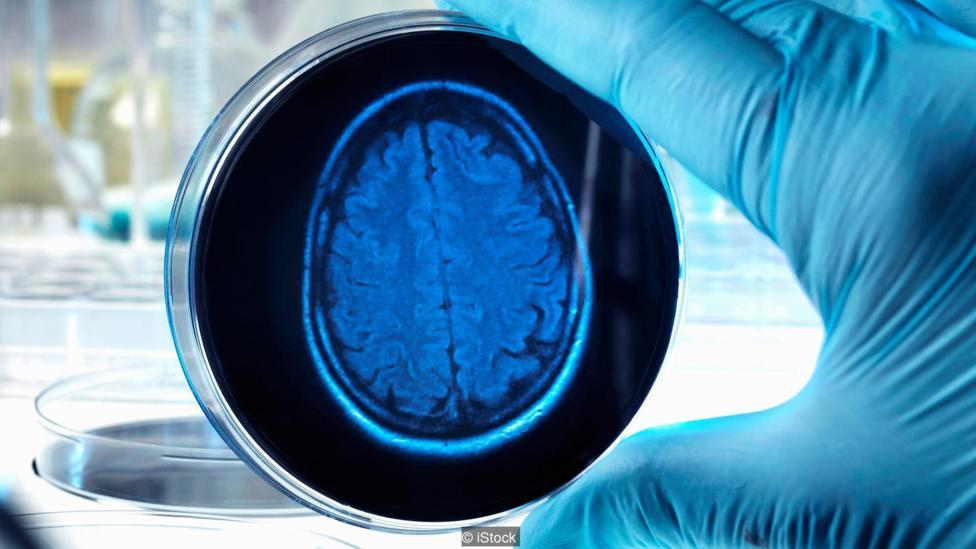 Có thể nuôi não người biết suy nghĩ ngoài cơ thể? - 2