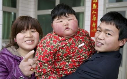 Trung Quốc sắp dẫn đầu thế giới về  trẻ em béo phì - 1