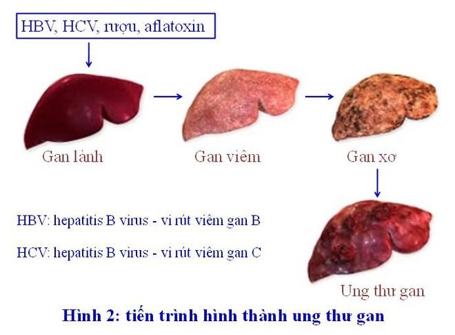 GS Nguyễn Chấn Hùng: Điểm mặt những bệnh ung thư đến từ virus, từ miệng - 1