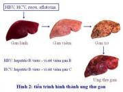 Sức khỏe đời sống - GS Nguyễn Chấn Hùng: Điểm mặt những bệnh ung thư đến từ virus, từ miệng