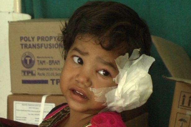 Kinh hãi phát hiện 80 con sâu trong tai bé gái 4 tuổi - 1