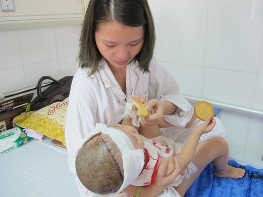 Bé 2 tuổi bị lột toàn bộ da đầu vì tai nạn giao thông - 1