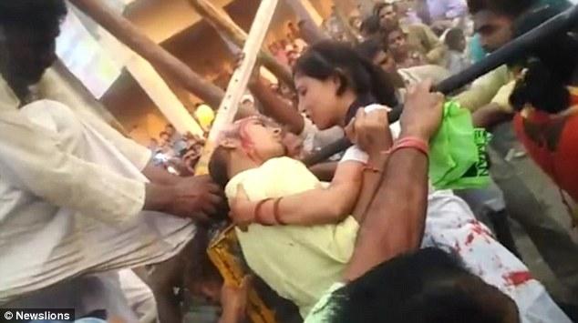 Sốc: Chụp ảnh selfie, nữ sinh Ấn Độ bị lột cả mảng da đầu - 2