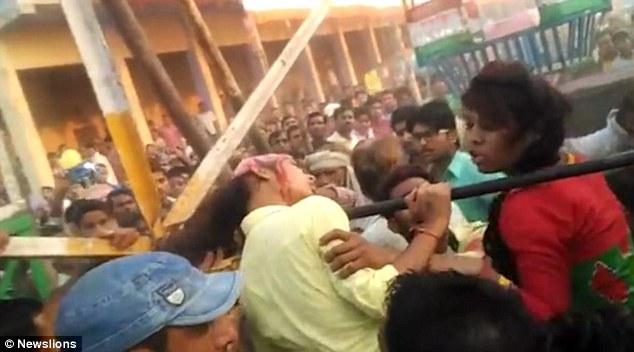 Sốc: Chụp ảnh selfie, nữ sinh Ấn Độ bị lột cả mảng da đầu - 1