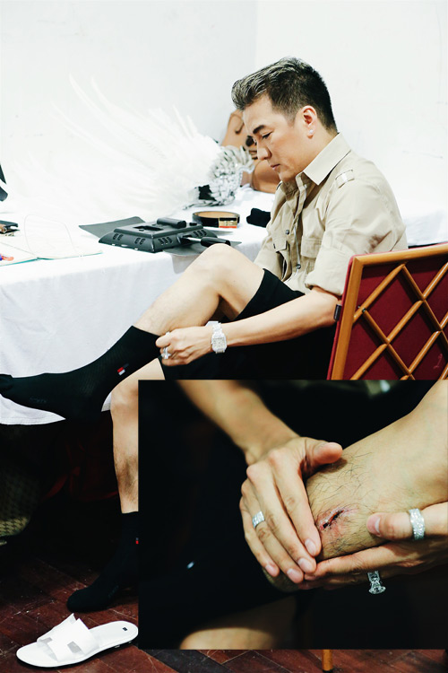 Mr Đàm đau đớn vì lại bị rách chân trước giờ diễn show 12 tỉ - 2