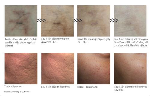 Pico Laser – Công nghệ đỉnh cao trong điều trị da thẩm mỹ và xóa xăm - 3