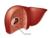 Sức khỏe đời sống - Người béo phì, đái tháo đường đề phòng ung thư gan