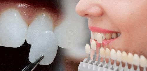 Ngọc nữ Bolero Tố My đẹp cuốn hút với hàm răng trắng sáng nhờ mặt dán sứ Veneer - 2