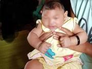2 bé mắc chứng đầu nhỏ ở Đắk Lắk không phải do Zika