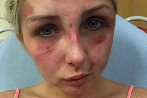 Cô gái bị đánh tím mặt vì phản đối bạn trai hút thuốc - 1