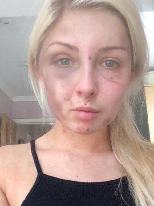 Cô gái bị đánh tím mặt vì phản đối bạn trai hút thuốc - 2