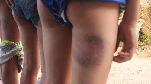 6 học sinh bị đánh bầm mông vì làm gãy cái ghế - 1