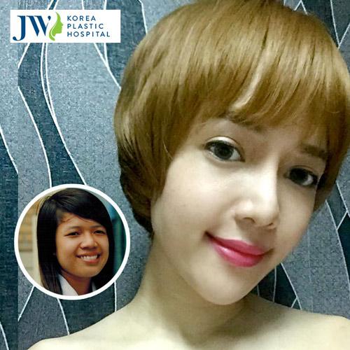 Sự thật về hotgirl Minh Yến sau 3 năm thẩm mỹ khuôn mặt - 5