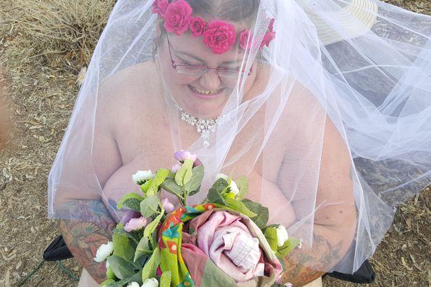 Sau 31 ngày hôn mê, cô gái tỉnh dậy làm đám cưới khỏa thân - 1