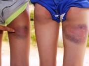 Tin tức trong ngày - Kỷ luật cảnh cáo thầy giáo đánh bầm mông 6 học sinh