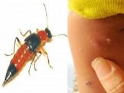 Sức khỏe đời sống - Bi hài quý ông suýt hỏng của quý vì trị độc bằng nọc kiến